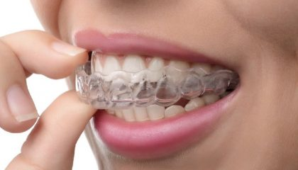 Invisalign in mission viejo