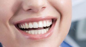 Gum Lift / Re-Contouring