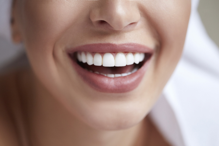 no prep veneers in mission viejo