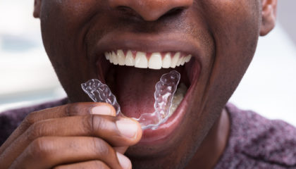 Man Adjusting Transparent Aligners In His Teeth